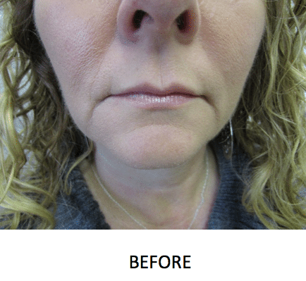 Restylane Injections - Silk, Lyft in Bloomfield / Hartford, CT