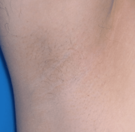 After Laser Hair Removal women in Hartford, Connecticut