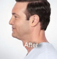 after Kybella double chin treatment