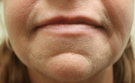 facial fillers Before & After Hartford, Connecticut