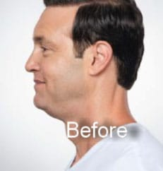 before Kybella double chin treatment