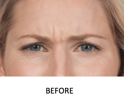 Botox Injections Before