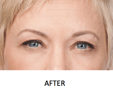 Botox Connecticut After