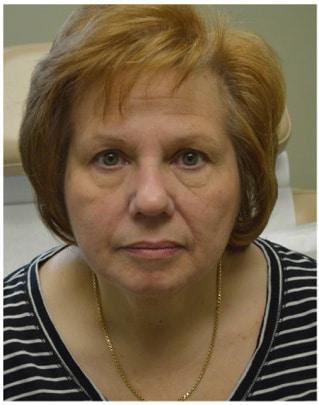 Botox BEFORE & after Hartford