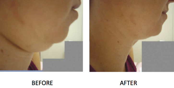 VShape fat reduction before & after on chin