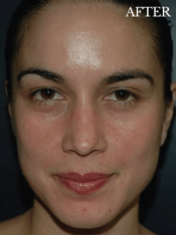 Chemical Peel in Hartford, CT - After