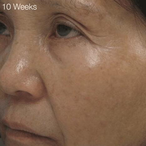 microdermabrasion - 10 weeks Bloomfield, CT