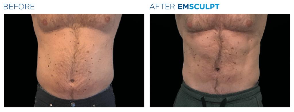 emsculpt before after male abdomen