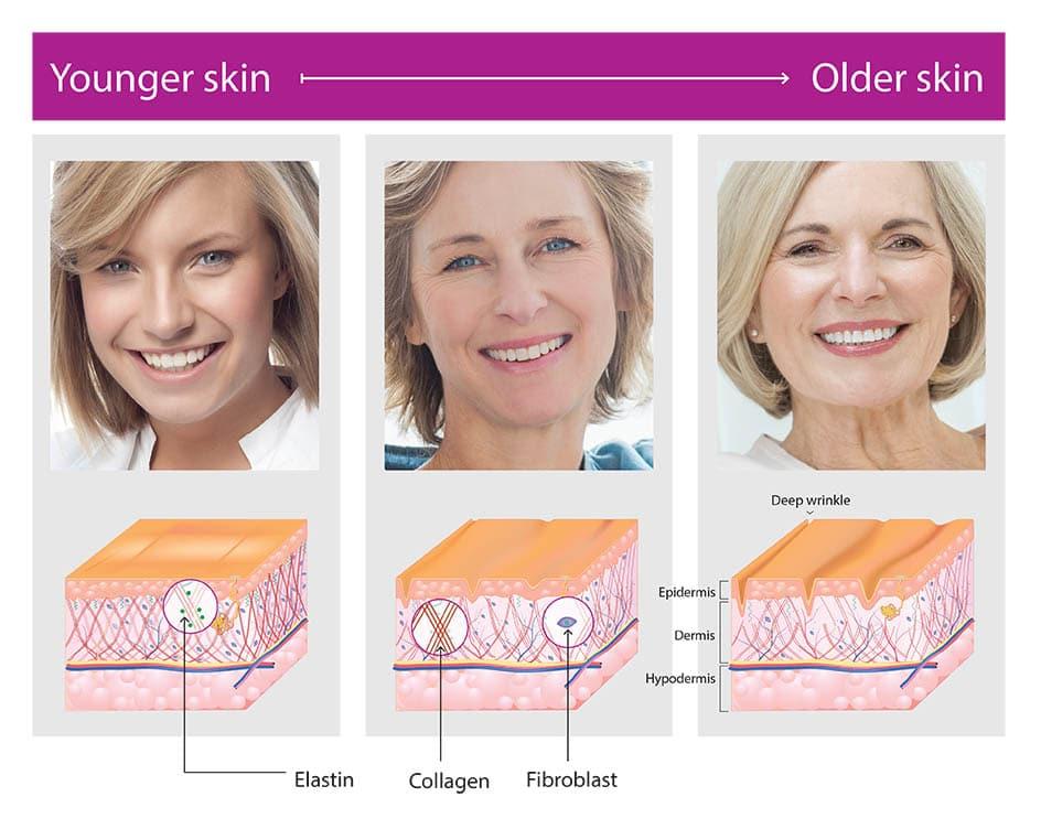 profound rf young skin vs old skin