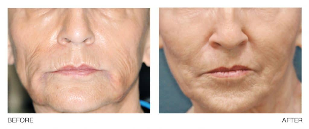 profound chin sagging skin before after Connecticut