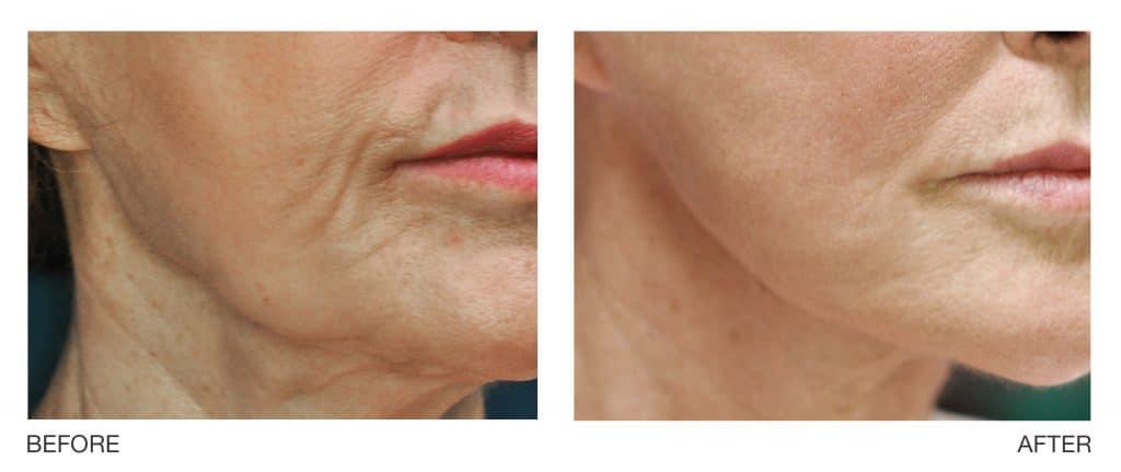 Profound - sagging skin before & after in Hartford, CT