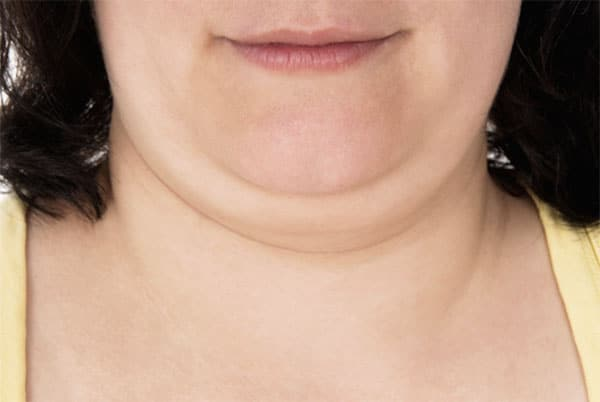 Double Chin treatment Hartford, CT