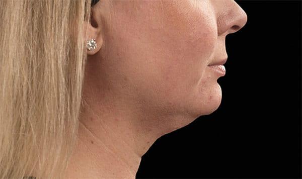 Double chin treatments near Hartford