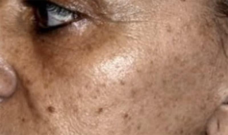 Sun Spots sun damaged skin Hartford, ct