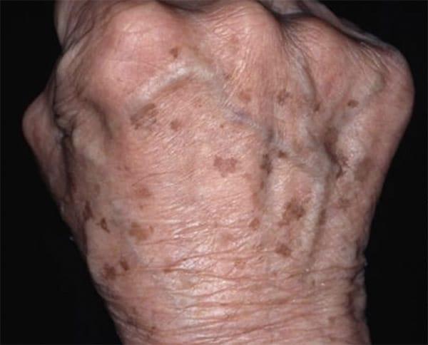 age spots hands liver spots Hartford