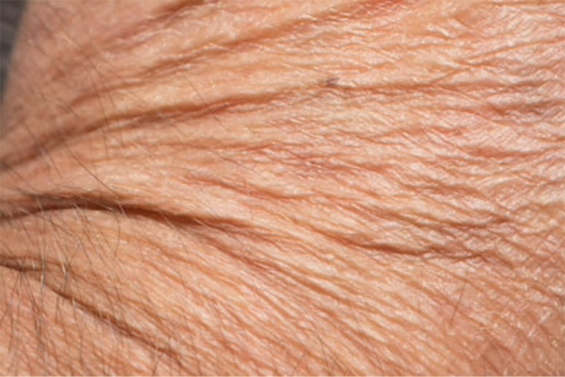 Wrinkle Treatments in Connecticut