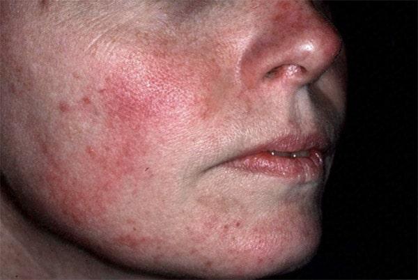 rosacea skin treatment Connecticut