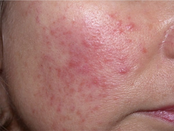 rosacea treatments in Hartford