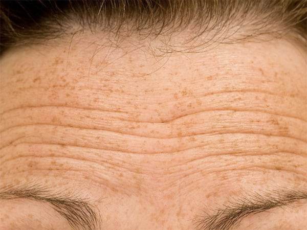 wrinkle treatment 3 brow lines Bloomfield, CT