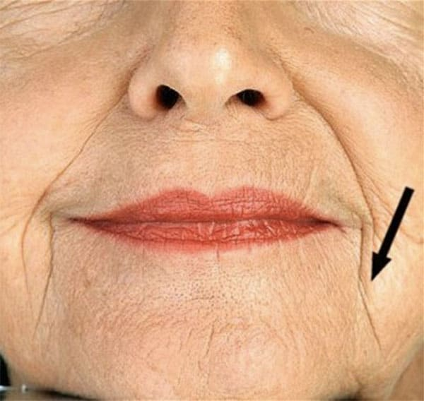 wrinkle treatments in Hartford