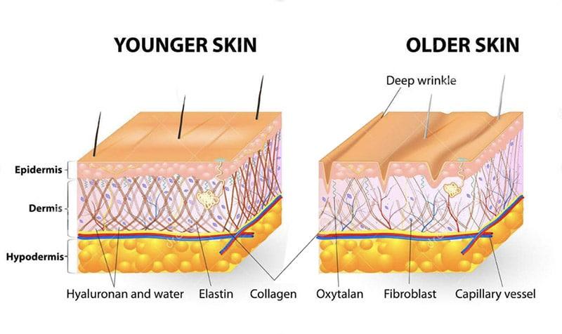 Tightening Older Skin