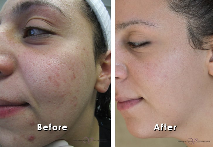 Acne Scar Treatments In Bloomfield Hartford Connecticut