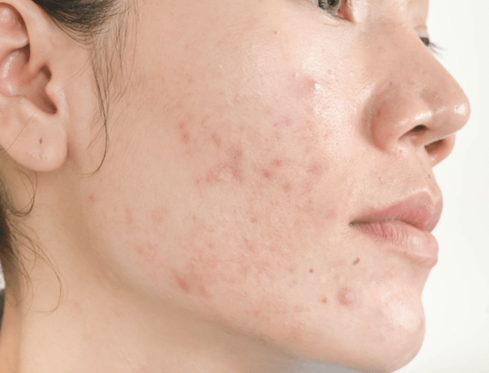 Acne Scar removal treatment Bloomfield, Connecticut