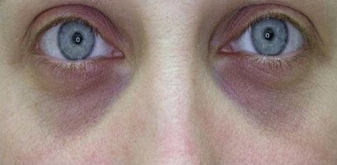 Best treatment for Dark Circles Under Eyes in Conncecticut