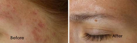 Micro needling Before & Afters
