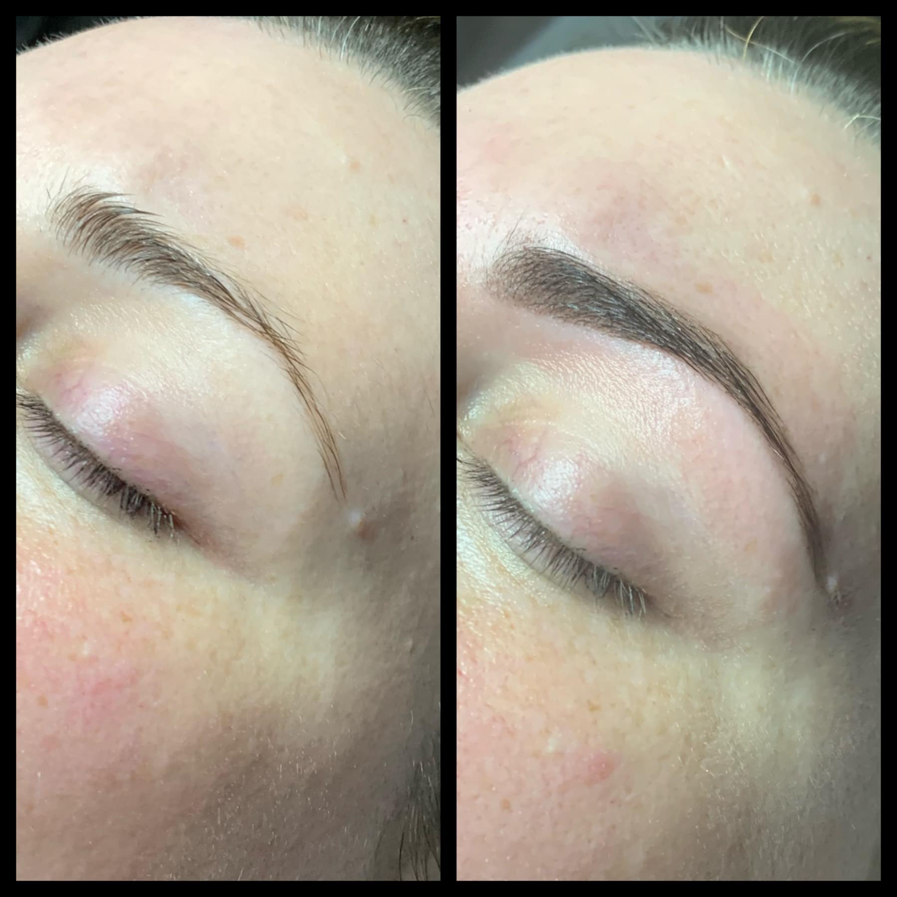 EYEBROW THERAPY